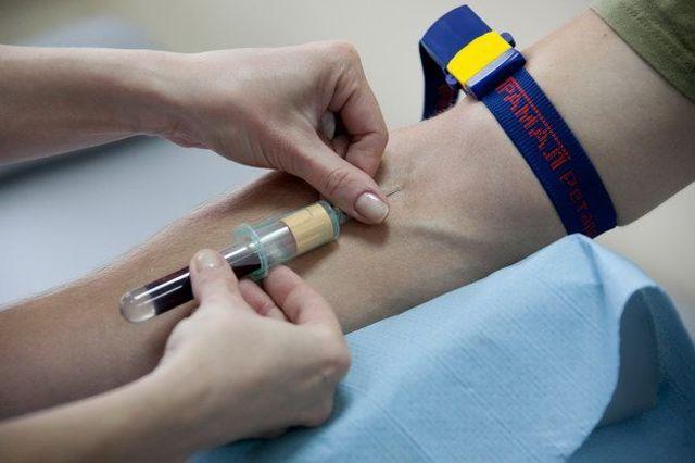 Анализ крови на Rw (реакция Вассермана) - что это и как сдавать