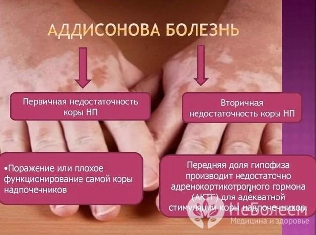 Болезнь Аддисона: что это, причины, симптомы и лечение