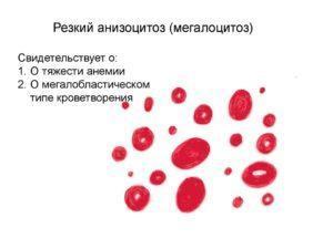 Анизоцитоз в общем анализе крови: что это? виды, причины, симптомы