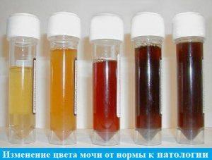 Цвет кала при гепатите: норма и отклонения, причины белого цвета