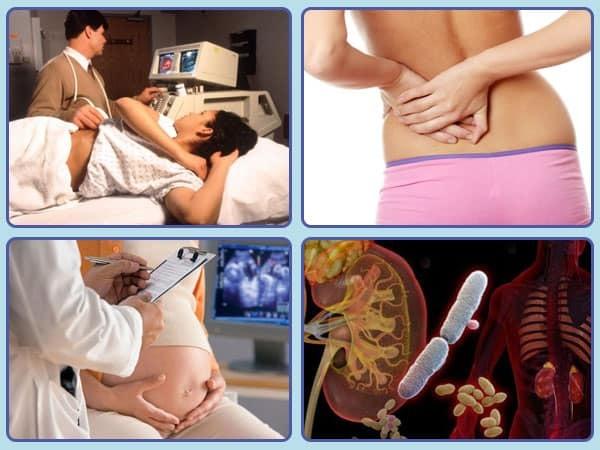 Песок в почках при беременности у женщин: причины, чем это опасно и как лечить