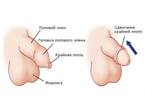 Фимоз у мужчин: классификация (рубцовый, парафимоз, относительный, гипертрофический), примеры фотографий у взрослых и детей, нужна ли операция, как лечить недуг в домашних условиях, код МКБ-10