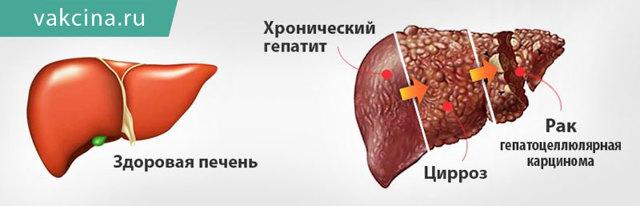 Гепатит B и беременность: какие существуют риски