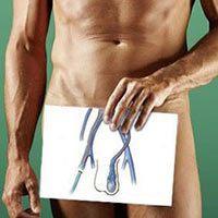 Варикоцеле: операция, симптомы болезни у мужчин, безоперационное лечение, фотографии, берут ли в армию с этим недугом, причины возникновения