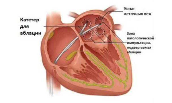 Операция по прижиганию сердца при аритмии: показания к применению и возможные последствия