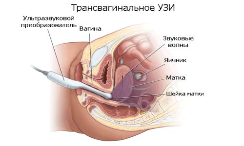 УЗИ мочевого пузыря: при цистите, у мужчин, у женщин, у детей, подготовка и цена обследования.