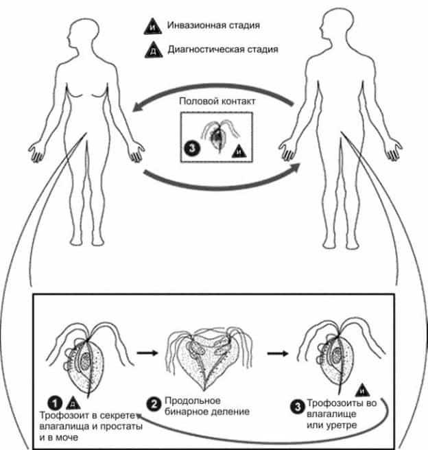 Трихомониаз у женщин: симптомы, первые признаки болезни, фото, схема лечения препаратами, особенности при беременности, какие свечи помогут