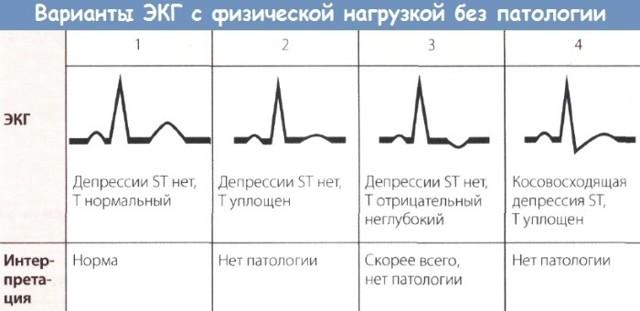 Холтеровское мониторирование ЭКГ: что это такое мониторинг по холтеру