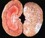 Нефрит почек: лечение и симптомы заболевания, классификация (интерстициальный, тубулоинтерстициальный, хронический, острый, волчаночный, гломированный), код по МКБ-10