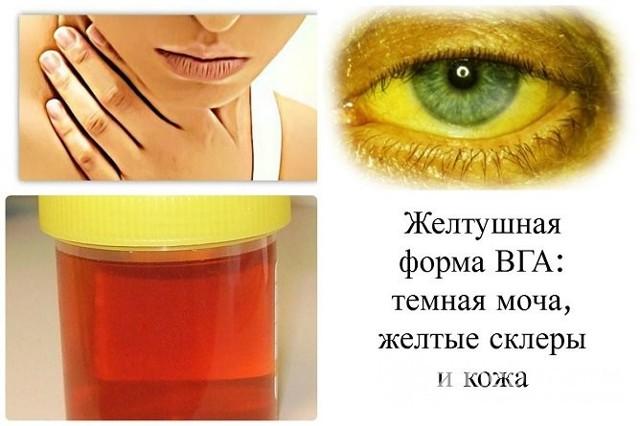 Гепатит А: что это такое, как передается, симптомы, лечение и профилактика