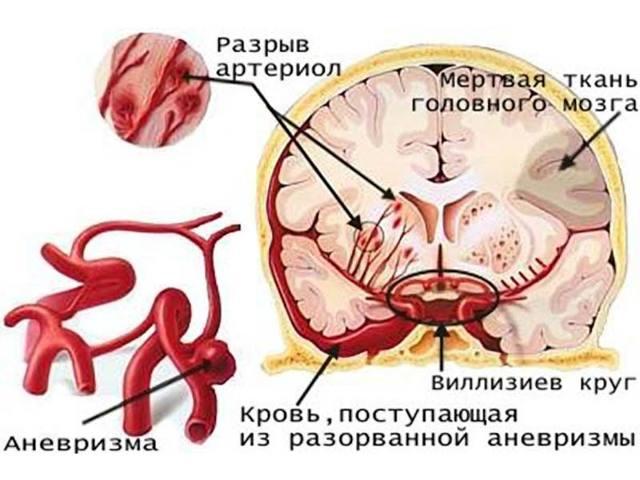 Аневризма — Это расширение кровеносного сосуда, симптомы и методы лечения, советы врачей
