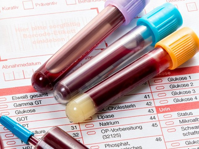 Тропониновый тест при инфаркте миокарда: как правильно делать и нормальные показатели анализа
