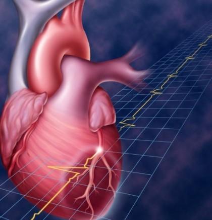 Обширный инфаркт: возможные последствия и шансы на жизнь