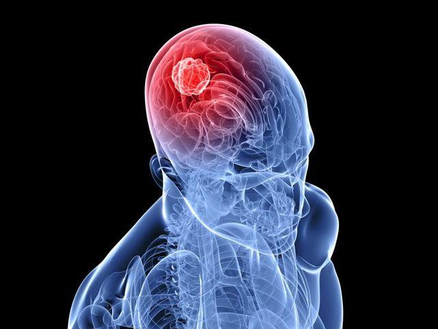Рак почки: симптомы, признаки у мужчин и женщин, прохождение лечения в Германии, надо ли жить при 4 стадии, что говорят на форуме больных