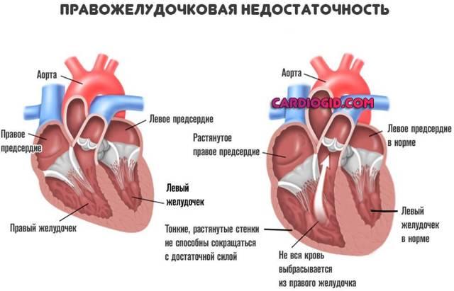 Лечение сердца — ТОП 5 эффективных методов лечение заболеваний сердца, симптомы и ответы врачей