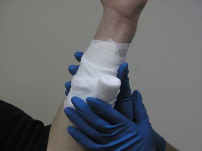 Венозное кровотечение - признаки, первая помощь и причины