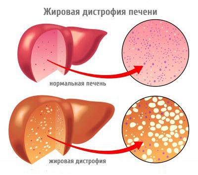 Гепатит: виды, вирусная и невирусная форма, лечение и профилактика