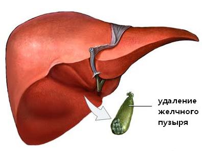 Боль в правом боку после удаления желчного пузыря