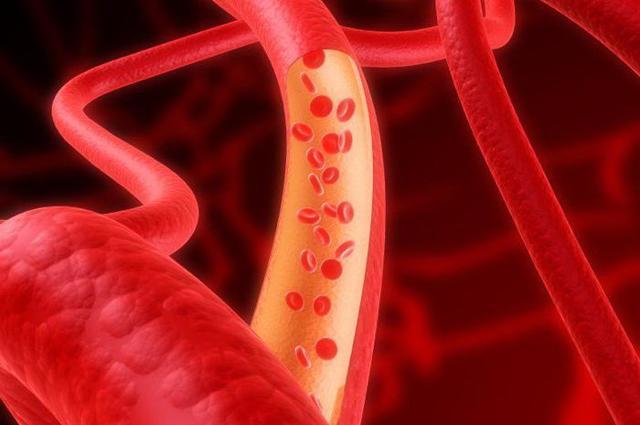 Средства для укрепления сосудов на ногах: лекарства, гимнастика и витамины для стенок кровеносных капилляров