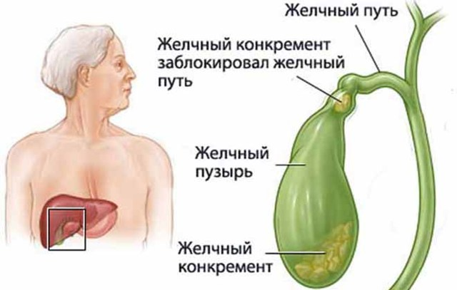 Что такое водянка: болезнь желчного пузыря и почек, фото, симтомы у женщин