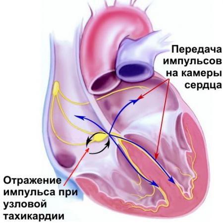 Пароксизмальная тахикардия — Симптомы и основные виды тахикардии, методы лечения, советы врачей