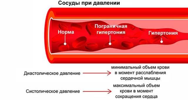 Гипертензия и гипертония — Отличия артериальных заболеваний, методы лечения и советы врачей
