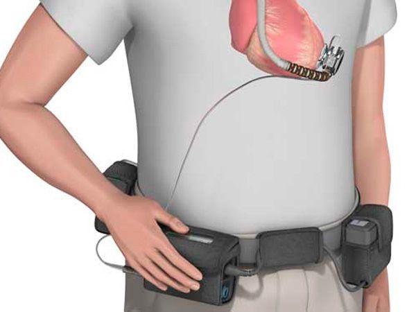 Одышка при сердечной недостаточности — Лечение и диагностика сердца, симптомы и основные причины заболевания