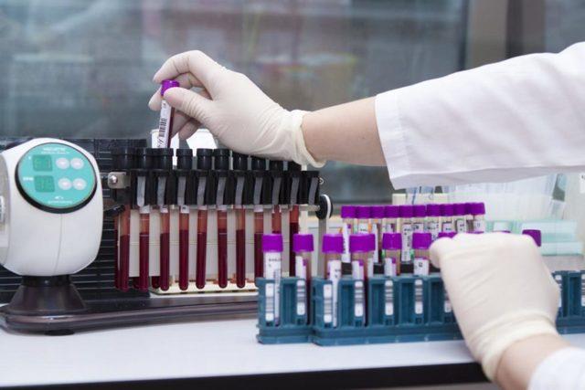 Ложноположительный анализ на гепатит С: что делать