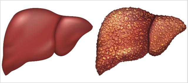 Показатели печени при циррозе печени, какие анализы и лабораторные исследования необходимо провести