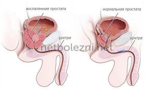 Сгустки крови в моче у мужчин: причины, чем это опасно и что делать