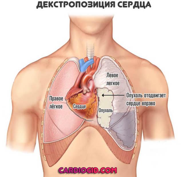 С какой стороны сердце — Структура и расположение человеческого сердца, анатомия, ответы врачей