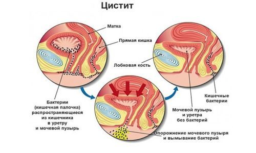 Бактериальный цистит у женщин и мужчин: причины, симптомы, лечение, виды бактерией провокаторов заболевания