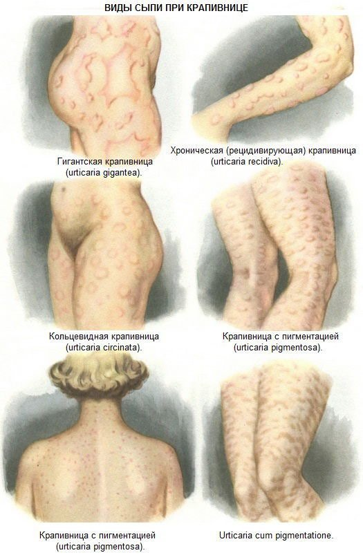 Аллергия во время беременности: влияние на плод и особенности лечения