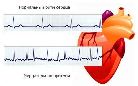 Способы снятия приступа аритмии сердца в домашних условиях