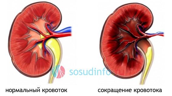 Стеноз почечной артерии — что это, симптомы и лечение
