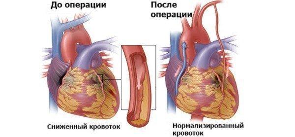 Атипичные формы инфаркта миокарда: характерные симптомы, диагностика и прогноз на лечение