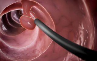 Полип уретры: лечение у женщин, код по МКБ-10, отзывы на форуме о проведении операции, симптомы болезни, помогут ли народные средства
