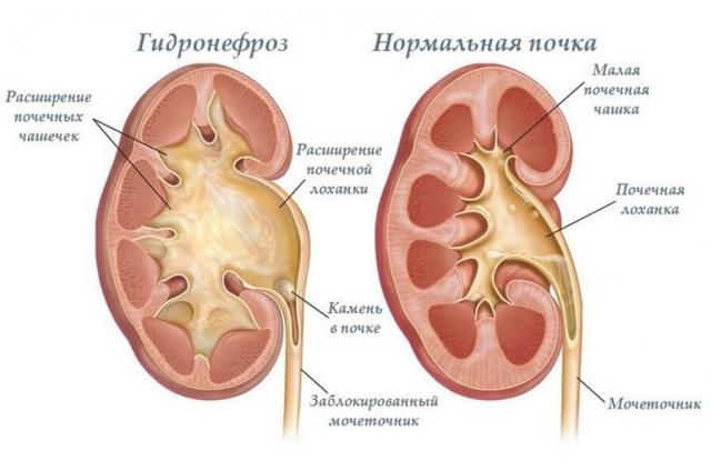 Гидронефроз почек: что это такое, каким может быть исход заболевания, симптомы и лечение недуга, код по МКБ-10, особенности у новорожденных (плода), правое левое двухстороннее расположение