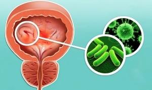 Вирусный цистит: причины, диагностика, симптомы и лечение у женщин, мужчин и детей