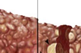 Цирроз печени - это рак? В чем их схожесть и различия, симптомы цирроза и рака печени