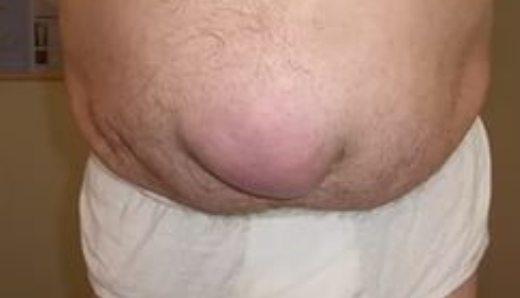Гиперактивный мочевой пузырь: причины, симптомы и лечение