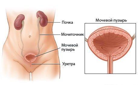 Если матка давит на мочевой пузырь и прямую кишку: причины, чем это опасно и что делать