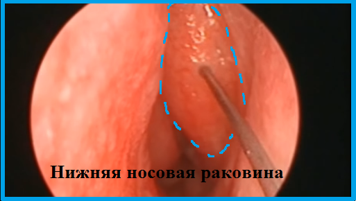 Прижигание сосудов в носу лазером и серебром: суть метода, процесс и отзывы врачей