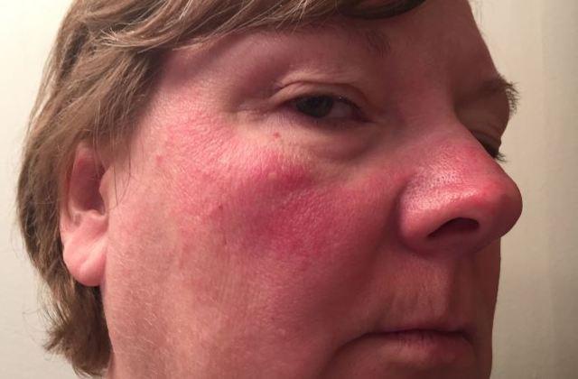 Лекарственная аллергия - причины, симптомы, диагностика и ...