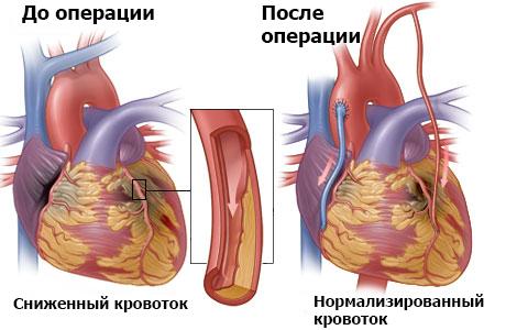 Операция на сердце — Основные виды и показания сердечно-сосудистой хирургии, советы кардиолога