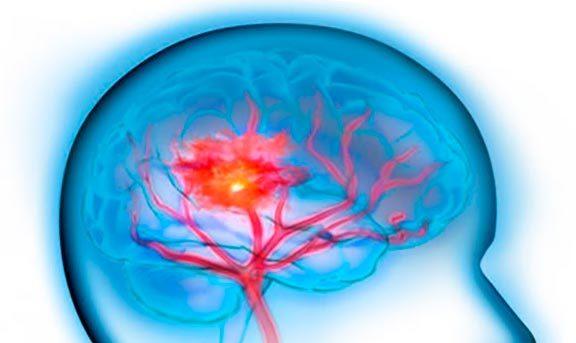 Симптомы и первые признаки инсульта: что делать при инсульте и как его лечить