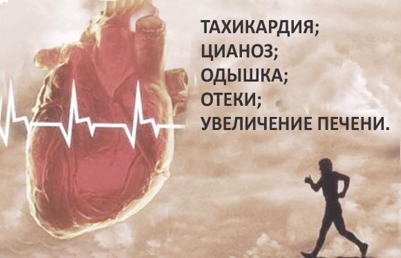 Сердечная недостаточность — Основные симптомы и методы лечения, диагностика и советы врачей