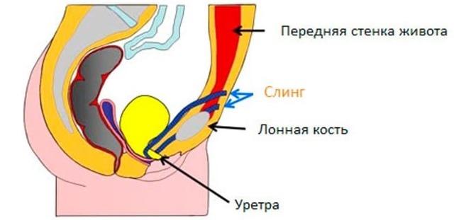 Слинговые операции при недержании мочи у женщин