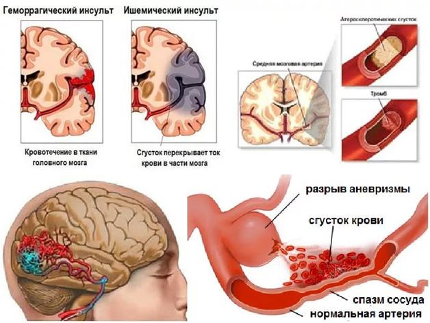 Питание после инсульта: что можно кушать при инсульте головного мозга