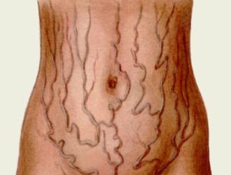Как передаётся цирроз печени, заразен ли он, передается ли цирроз печени по наследству